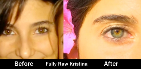 Fully Raw Kristina Before After Iridology Eyes Raw Vegan