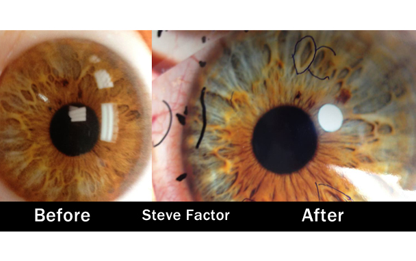 Steve Factor Before After Iridology Eyes Raw Vegan